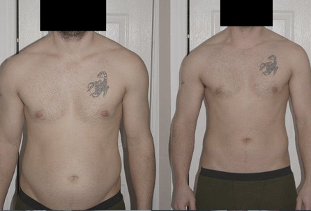 Terapie w biomedzie pomogły mi schudnąć